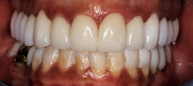 Upper Porcelain Restorations for TMD and Headache Relief After