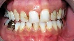 Upper Porcelain Restorations for TMD and Headache Relief Before