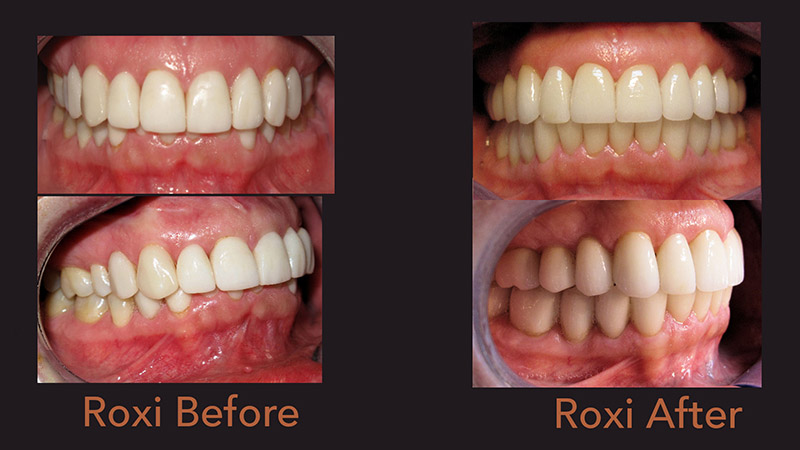 Roxi: Full Mouth Rehabilitation for TMD Before