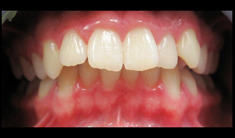 Skylan: Braces after expansion and overbite correction Before