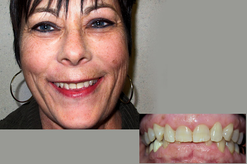 Sue : Full Mouth Rehabilitation for TMD Before